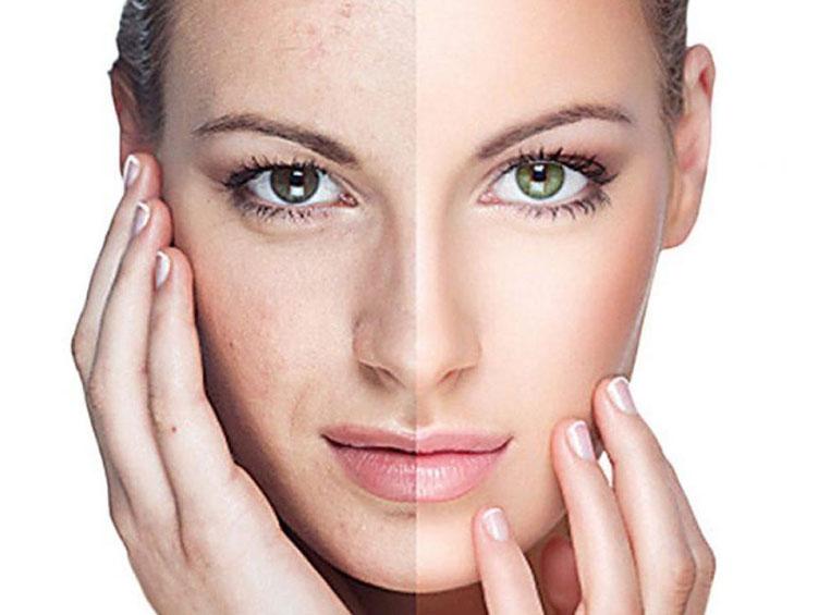 hydra_skin_ceuticals_dermaplastic