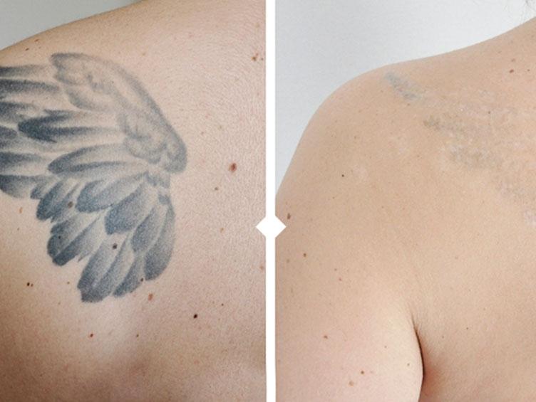 tatuajes_manchas_dermaplastic
